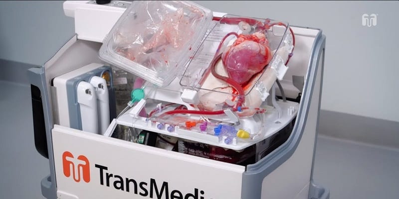 transmedics organ care system